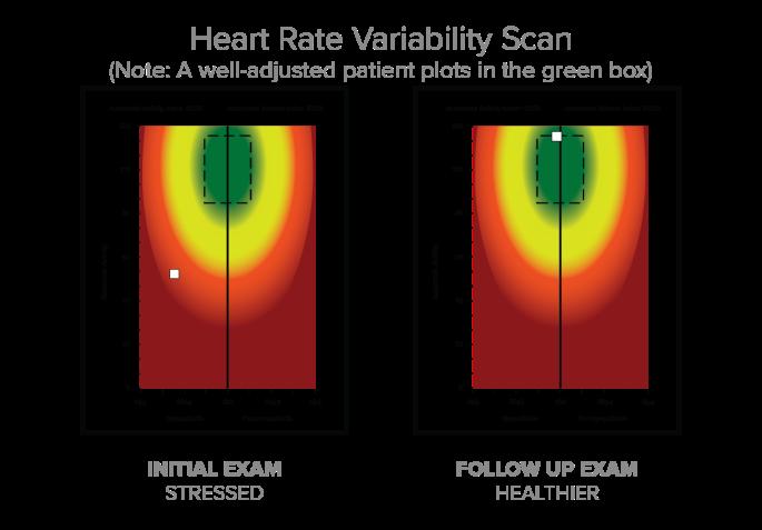 HR-Variability-1